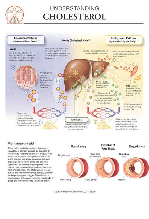Cholesterol - Anatomical Wall Chart