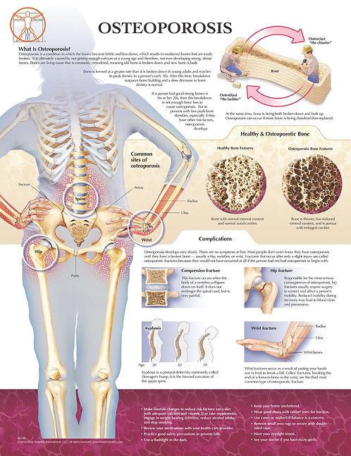 Osteoporosis - Anatomical Wall Chart