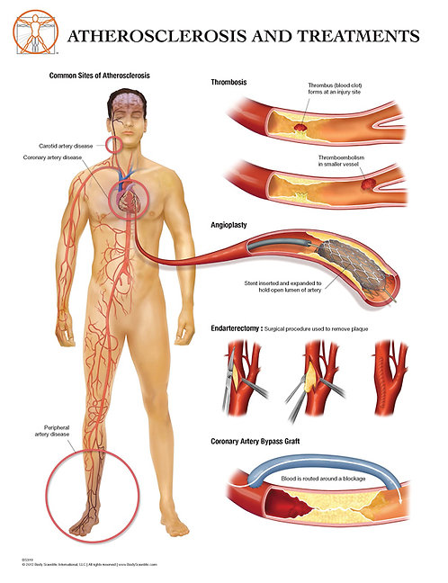 Complications of Atherosclerosis - Anatomical Wall Chart