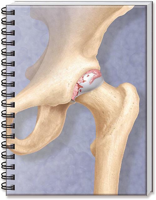 Rheumatoid Arthritis - Doctor's Notebook
