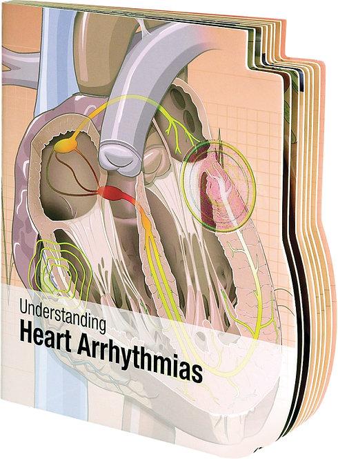 Understanding Heart Arrhythmias - Lenticular Book