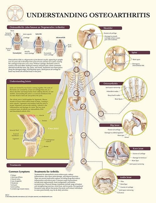 Understanding Osteoarthritis - Anatomical Wall Chart