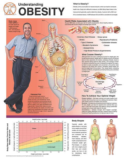 Obesity - Anatomical Wall Chart