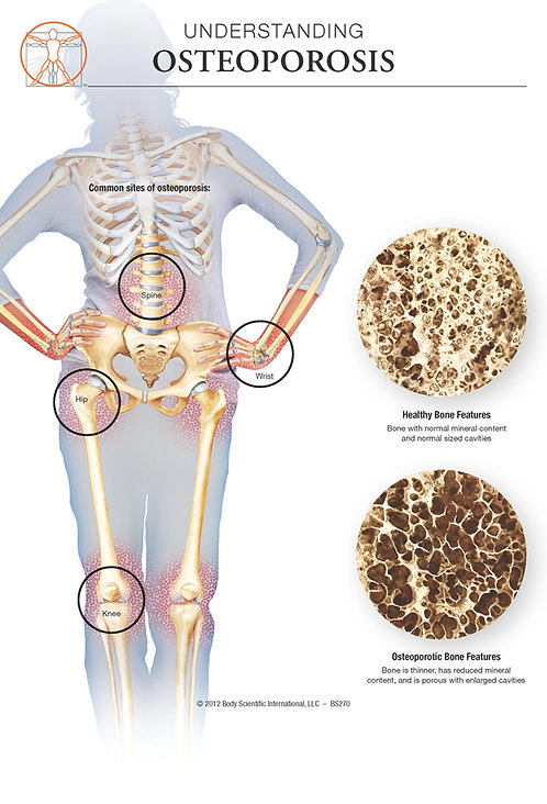 Osteoporosis - Anatomical Wall Chart