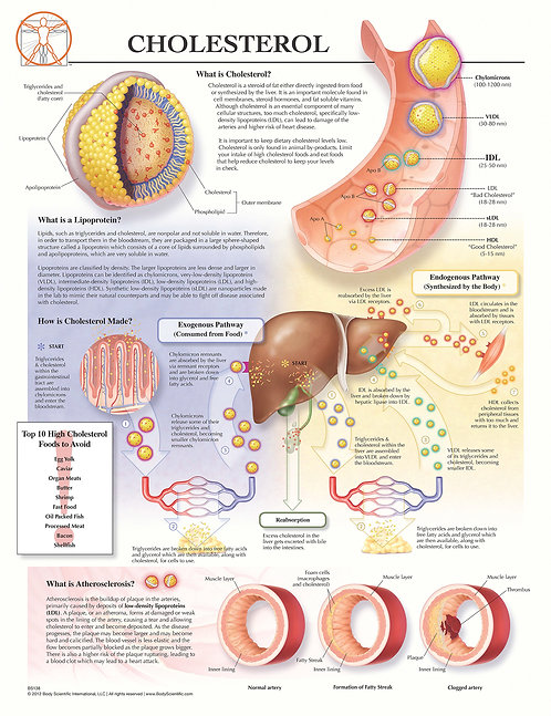 Cholesterol - Anatomical Wall Chart