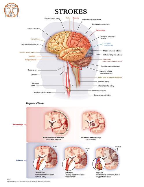Stroke and Brain Anatomy - Anatomical Wall Chart