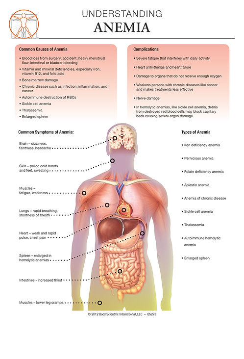 copy of Anemia - Anatomical Wall Chart