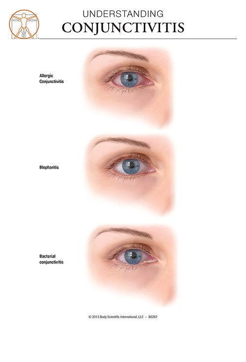 Conjuntivitis - Anatomical Wall Chart