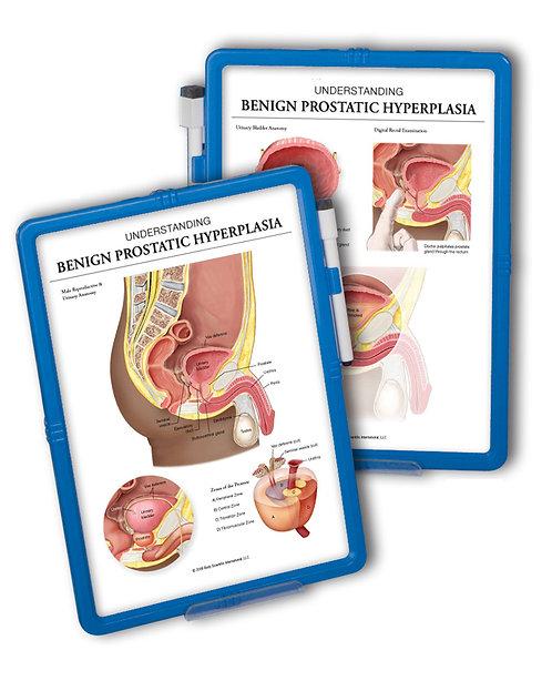 Benign prostatic hyperplasia (BPH) - Wipe-off Easel