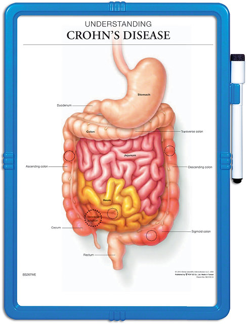 Understanding Crohn's Disease - Wipe-off Easel