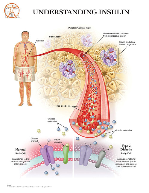 Type 2 Diabetes - Anatomical Wall Chart
