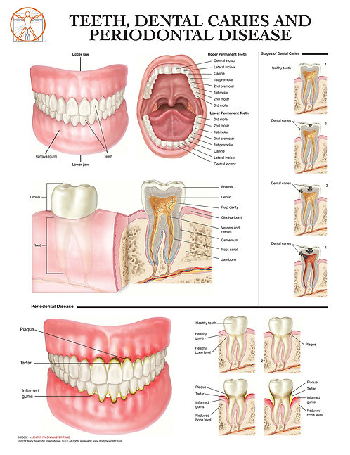 Teeth, Dental Caries, and Periodontal Disease - Anatomical Wall Chart