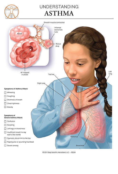 Asthma - Anatomical Wall Chart
