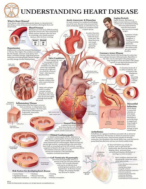 Understanding Heart Disease - Anatomical Wall Chart