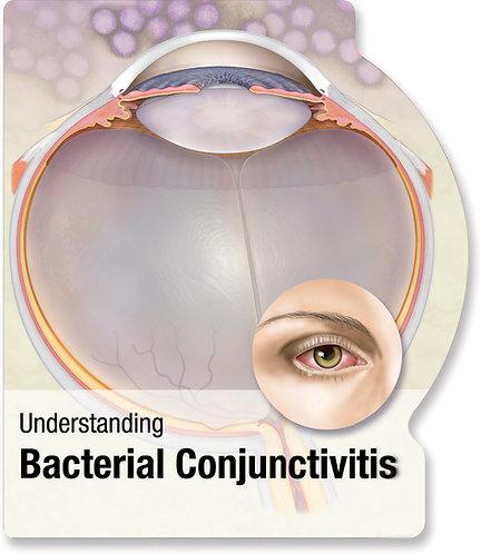 Bacterial Conjunctivitis - Lenticular Book