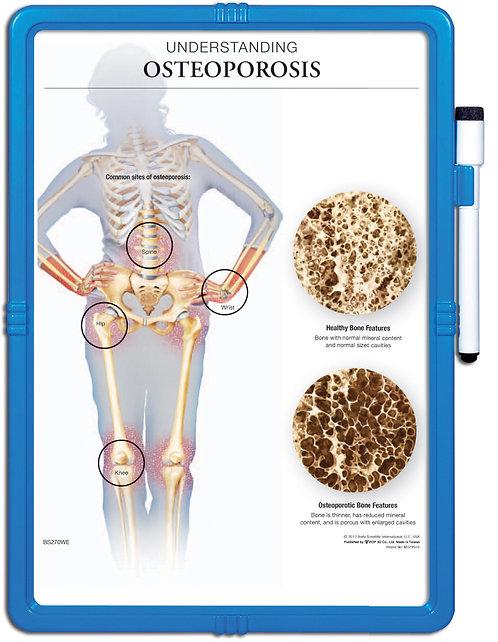 Understanding Osteoporosis  - Wipe-off Easel