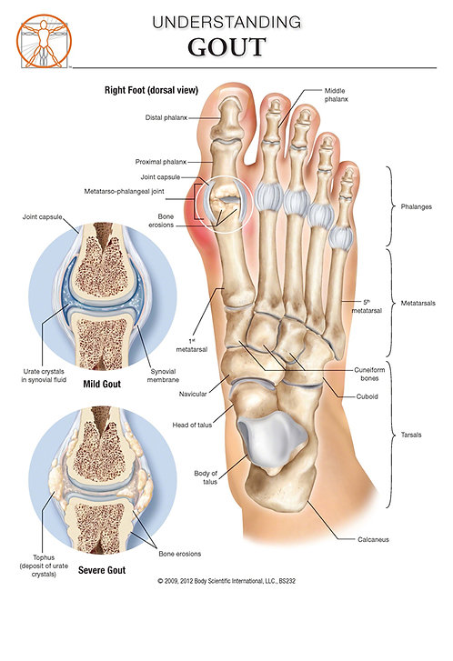 Gout - Anatomical Wall Chart
