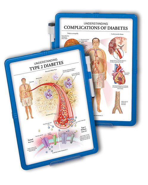 Complications of Diabetes  - Wipe-off Easel
