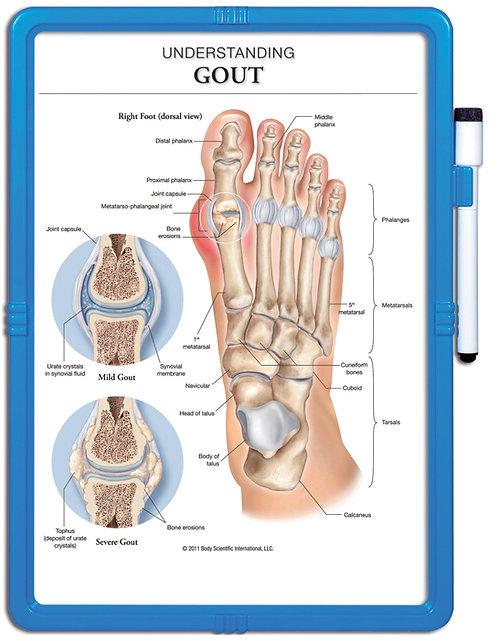 Understanding Gout - Wipe-off Easel