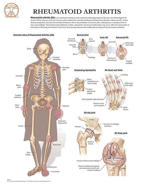 Rheumatoid Arthritis - Anatomical Wall Chart