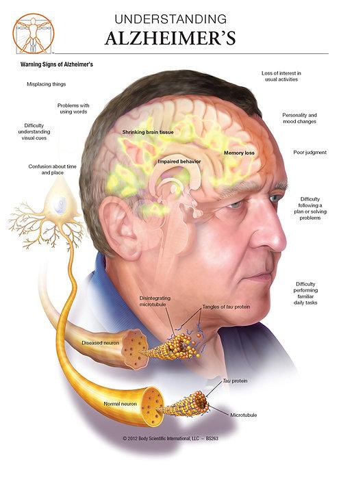 Alzheimer's Disease - Anatomical Wall Chart