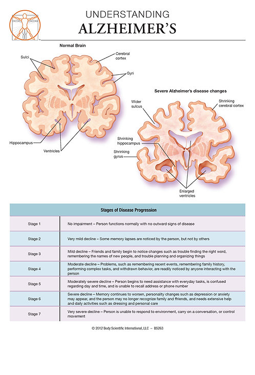 Alzheimer's Disease - Anatomical Wall Chart