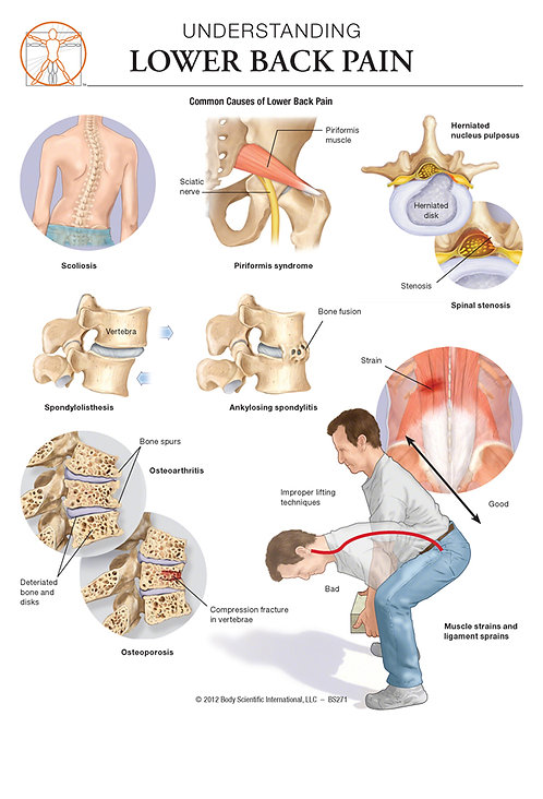 Low Back Pain - Anatomical Wall Chart