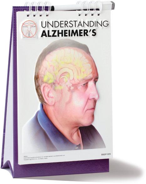 Understanding Alzheimer's - Flip Book