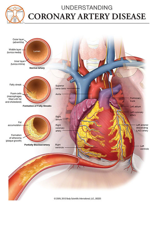 Coronary Artery Disease - Anatomical Wall Chart