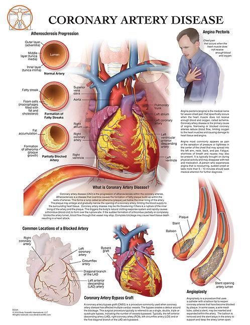Coronary Artery Disease - Anatomical Wall Chart