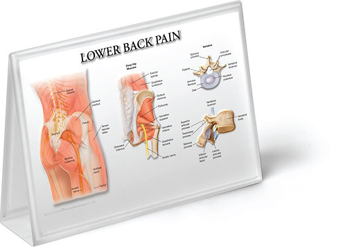 Low Back Pain - Anatomical Tent Chart