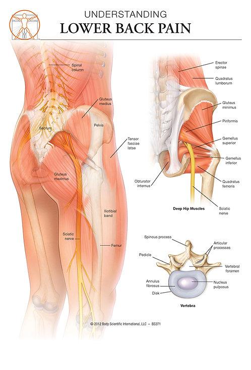 Low Back Pain - Anatomical Wall Chart