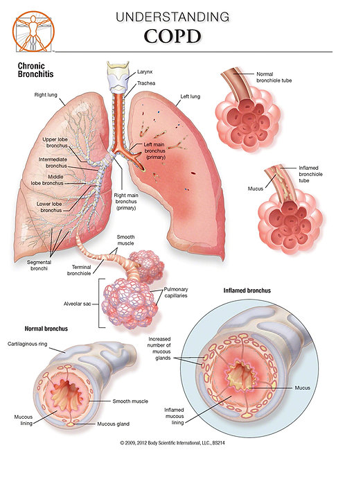 COPD - Anatomical Wall Chart
