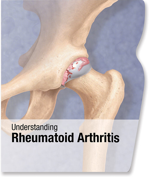 Rheumatoid Arthritis - Lenticular Book