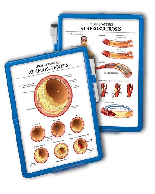 Understanding Atherosclerosis  - Wipe-off Easel
