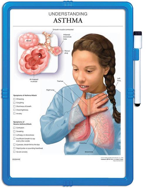 Understanding Asthma - Wipe-off Easel