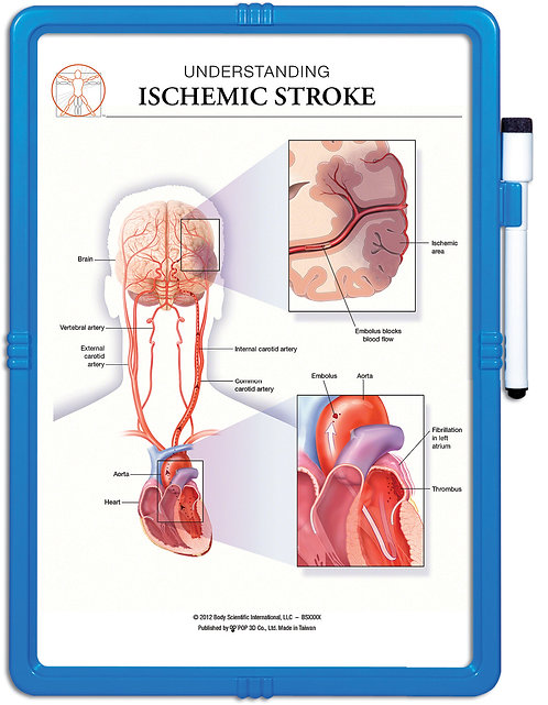 Understanding Ischemic Stroke - Wipe-off Easel