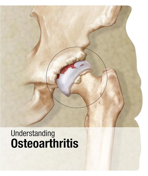 Osteoarthritis - Lenticular Book