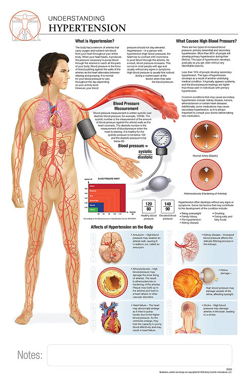 Hypertension - Anatomical Wall Chart