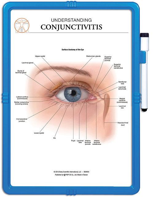 Understanding Conjuctivitis - Wipe-off Easel