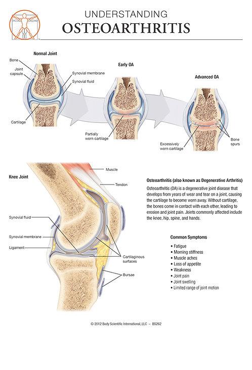Osteoarthritis - Anatomical Wall Chart