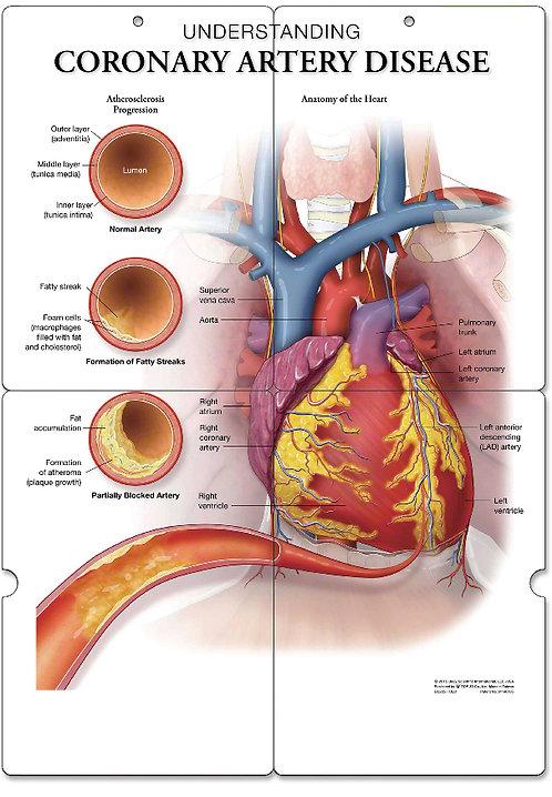 Coronary Artery Disease - Anatomical Folding Board Chart