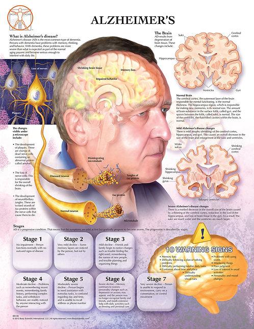 Alzheimer's - Anatomical Wall Chart
