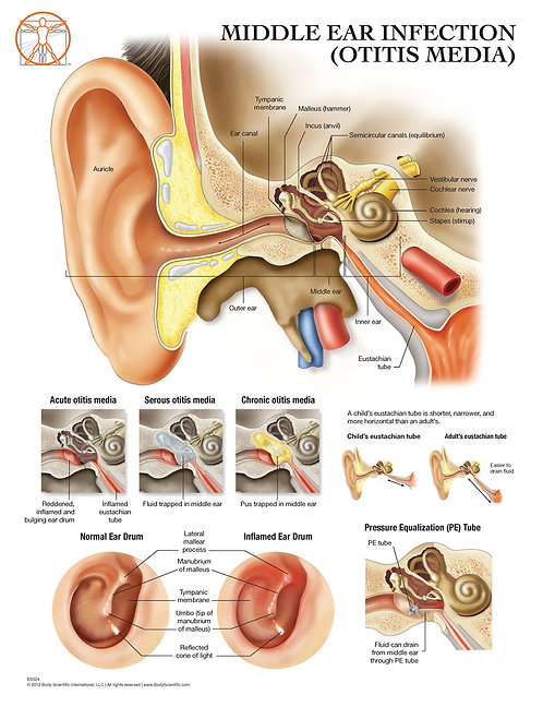 The Ear and Otitis Media - Anatomical Wall Chart