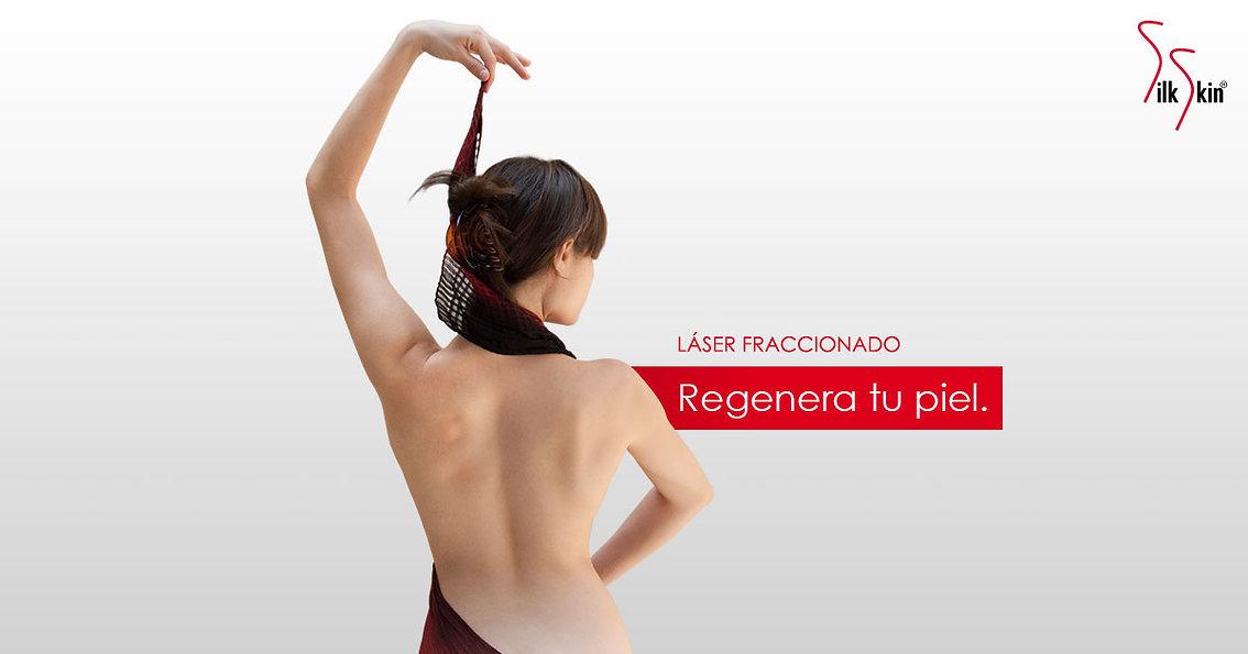 og-tratamientos-tratamiento-laser.jpg