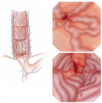 Varizes-de-esofago.jpg