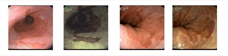 tratamento-de-esofago-de-barret1.jpg