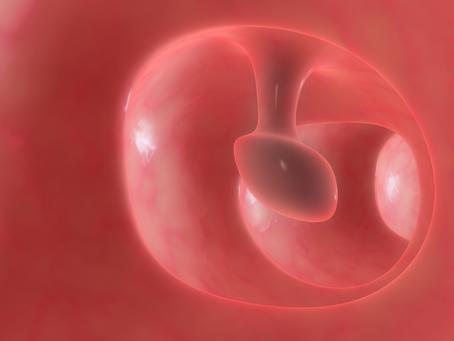 O que são Pólipos de cólon?