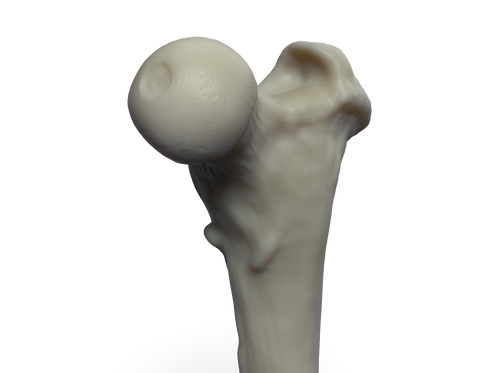 Head of Femur 1280 X 960 300 dpi (.png)