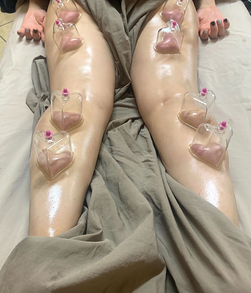 Cupping at Mind Body & Massage Spa_edited.jpg